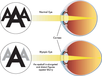 Myopia Causes in Picture